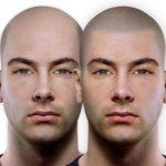 Trichopigmentácia Hairtattoo Alopécia